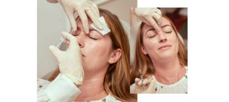 M2woman - The Changing Face of Botox